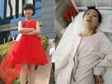 11岁女孩误喝妈妈一杯茶水中毒昏迷,住院4个月花了30万